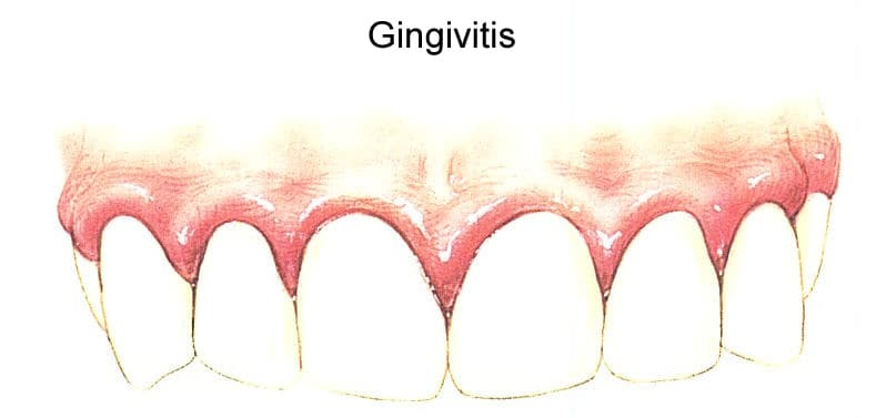gingivitis-symptoms-and-treatment